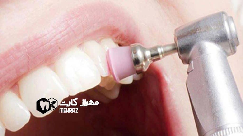 بروساژ-دندان