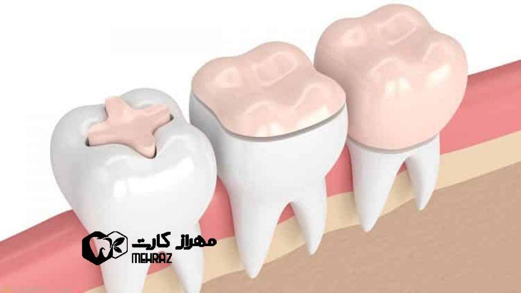 تاج-گذاشتن-روی-دندان