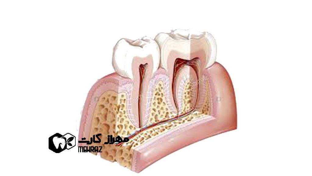سمنتوم-دندان