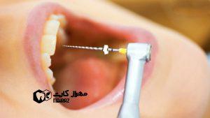 نکروز-دندان