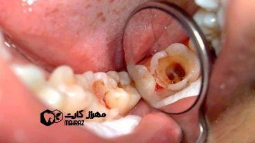 پالپیت دندان | عفونت داخل دهان