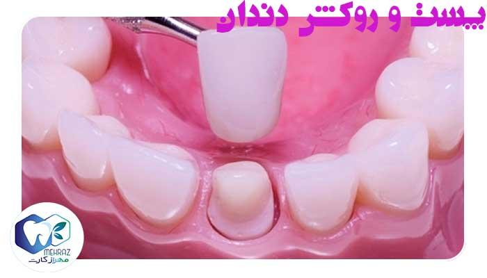 پست-و-روکش-دندان