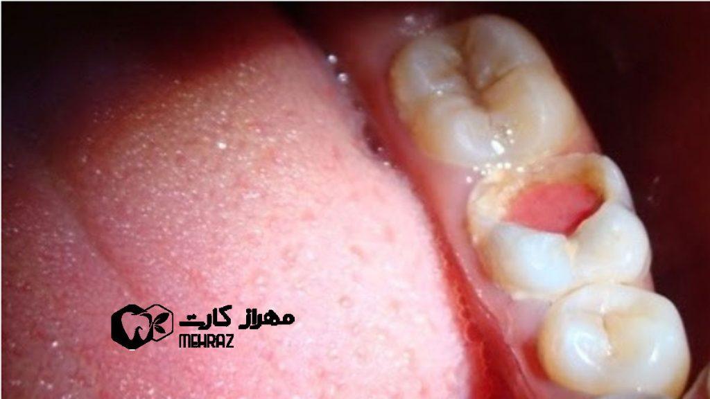 پولیپ-دندان