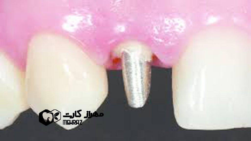 پین-دندان