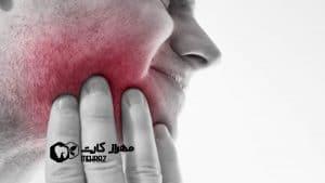 دندان-درد-عصبی