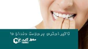 استرس-و-سلامت-دندان