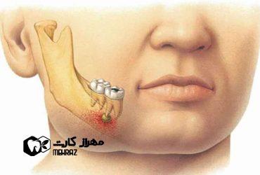 پیله دندان | پیشگیری