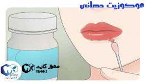 موکوزیت-دهانی