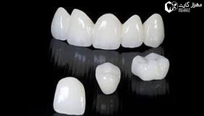 لمینت دندان در تهران