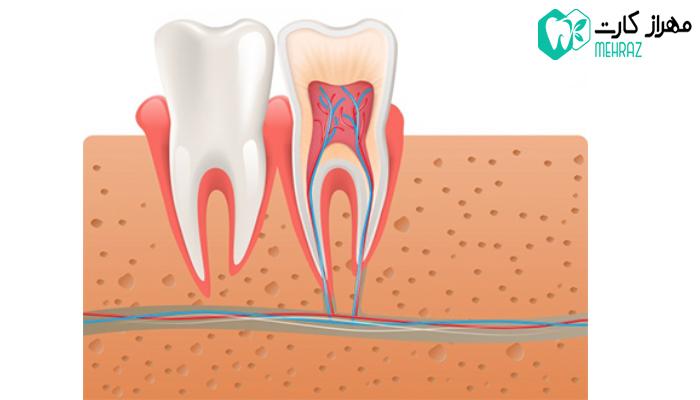 متخصص عصب کشی دندان