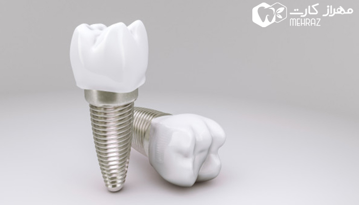 چه مدت طول می کشد تا دوره نقاهت ایمپلنت دندان تمام شود؟
