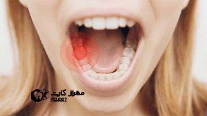 اختلالات اکتسابی دهان و صورت