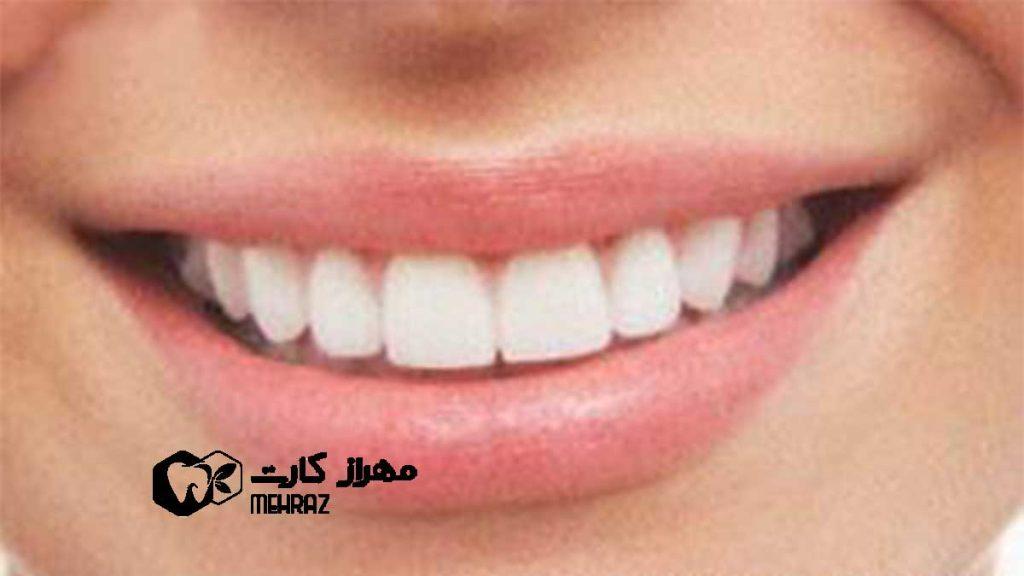 خرد شدن دندانها