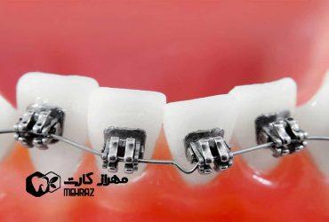 تغییر رنگ دندان ها بعد از ارتودنسی به چه علت است؟