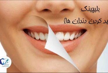 بلیچینگ-سفید کردن دندان