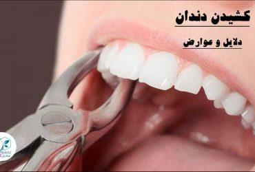 کشیدن دندان-عوارض
