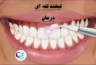 لبخند لثه ای-درمان