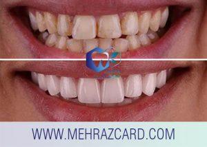 کامپوزیت دندان2