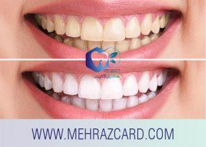 کامپوزیت دندان3