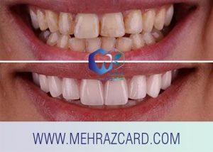 کامپوزیت دندان4