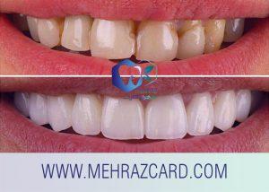 کامپوزیت دندان5