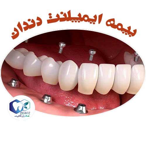 بیمه-ایمپلنت-دندان