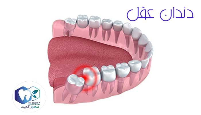 دندان-عقل