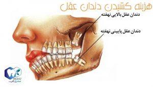 قیمت-کشیدن-دندان-عقل