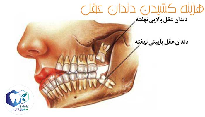 هزینه های کشیدن دندان عقل و انواع دندان عقل با استفاده از مهرازکارت