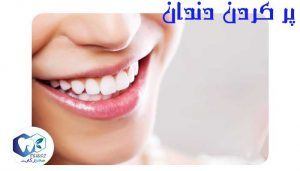 پر-کردن-دندان