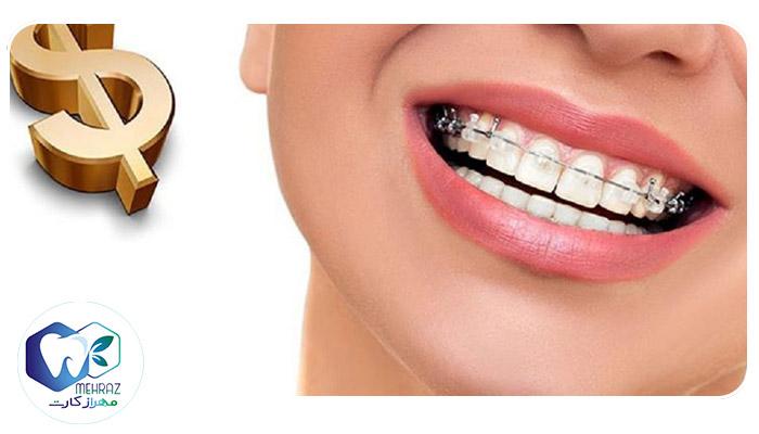 Dental orthodontics2