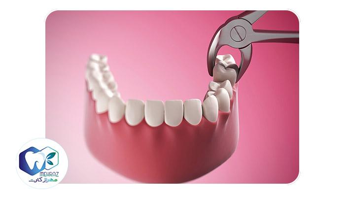 Extraction of wisdom teeth2