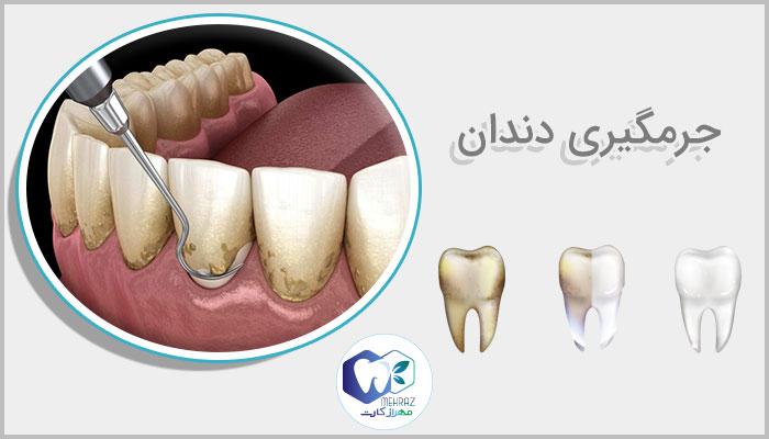 هزینه جرمگیری دندان